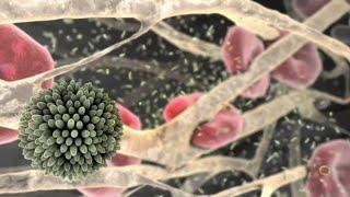 Tấn công tim do xơ vữa động mạch - Heart Attack due to Atherosclerosis