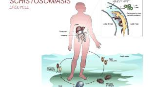 Nonton Webinar: Schistosomiasis - Diagnosis and Treatment (2014) Film Subtitle Indonesia Streaming Movie Download