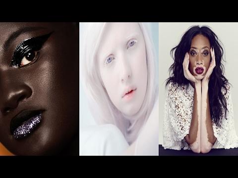 6 modelle che hanno fatto della propria diversità un punto di forza