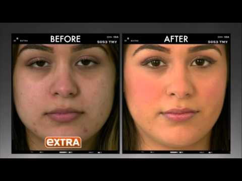 Reduce Acne Scars and Laugh Lines