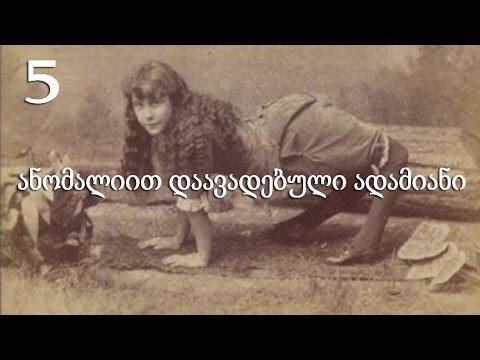 5 ანომალიით დაავადებული ადამიანი (ვიდეო)