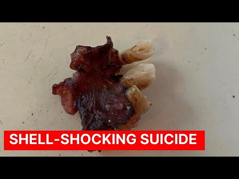 Shell-Shocking Suicide
