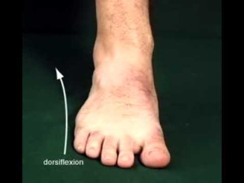 icd 9 code peroneus longus tendon