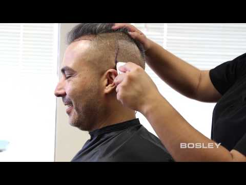bosley fue follicular unit extraction hairbyhair restoration from bosley how itu0027s done - Bosley Review