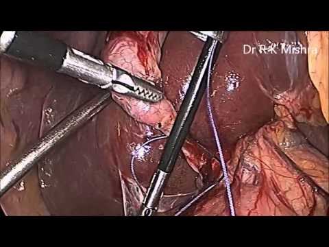 Laparoscopic Cholecystectomy by Knotting Cystic Duct