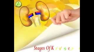 stages of kidney, stages to renal disease, 5 stages of kidney disease, 5 stages of renal disease, stages wise description of kidney disease, kidney problem.