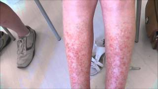A very severe case of Sun Allergy (Polymorphic Light Eruption) before and 5 days after treatment