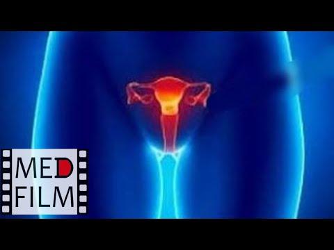 Опущение и выпадение матки и влагалища © Prolapse of the uterus and vagina