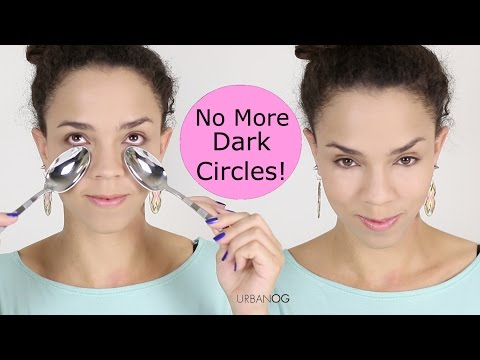 how to relieve eye puffiness