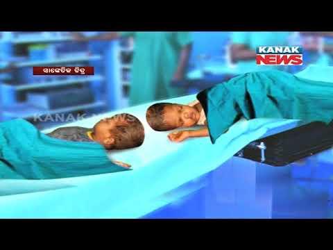 Video Conjoined Twins Jaga-Balia Kept Under Observation download in MP3, 3GP, MP4, WEBM, AVI, FLV January 2017