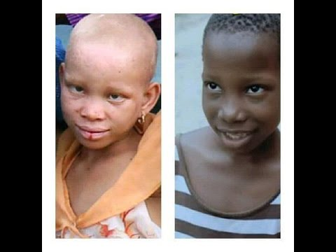 LATEST COMEDY  EMMANUELLA AND  LITTLE ALBINO GIRL