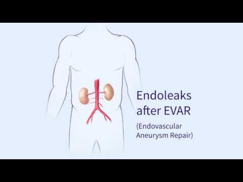 Endoleaks after Endovascular Repair of Thoracic Aortic Aneurysms (EVAR)