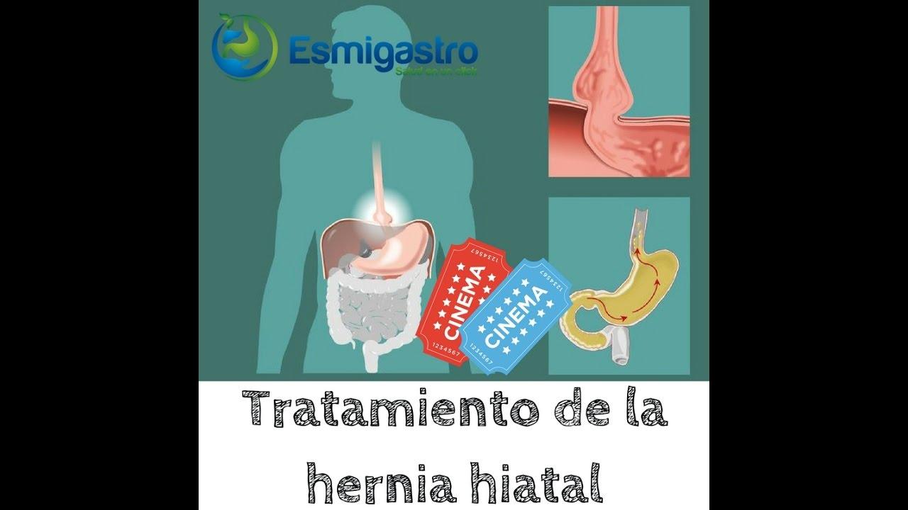 Tratamiento de la hernia hiatal