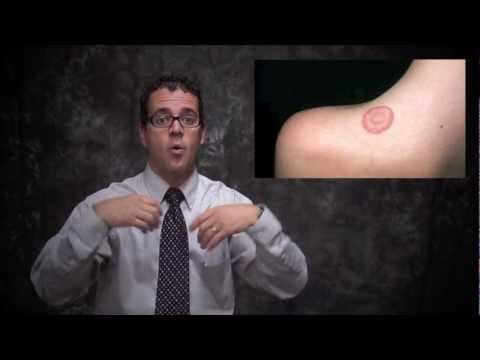 how to control ringworm