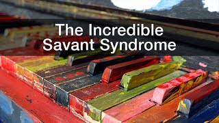 """(Visit: http://www.uctv.tv/) 1:34 - Main TalkDarold Treffert shares the fascinating story of Leslie Lemke, a musical savant, to provide a look at the characteristics of savantism. Recorded on 05/05/2017. Series: """"CARTA - Center for Academic Research and Training in Anthropogeny"""" [Show ID: 32447]"""