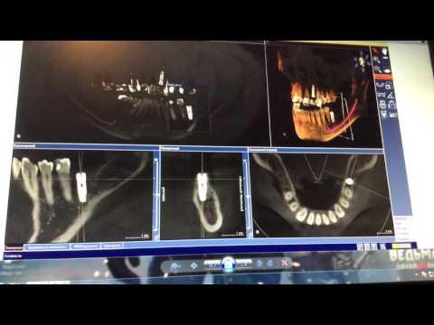 Всё о ренгене зубов