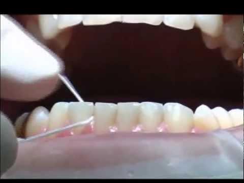 Правильное обращение с зубной нитью