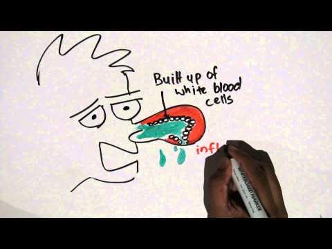 Antihistamine Pharmacology
