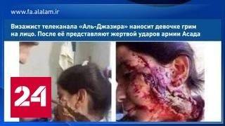 """Новый вброс: девочку, """"раненную солдатами Асада"""", загримировали в """"Аль-Джазире"""""""