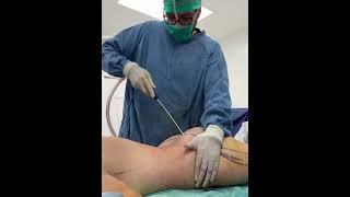 Brazilian Butt Fitness Plastic Surgeon in Tijuana Dr Ochoa, Flavio