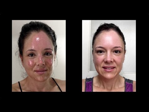Facial Burn and Healing - Neryl Joyce