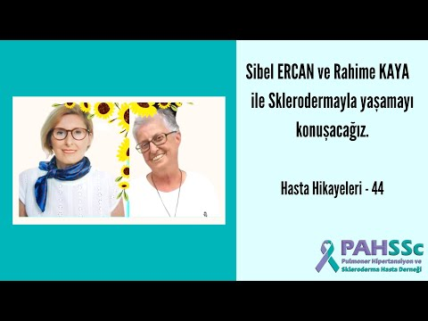Hasta Hikayeleri - Rahime KAYA ve Sibel ERCAN ile Sklerodermayla Yaşamak - 44 - 2021.06.27