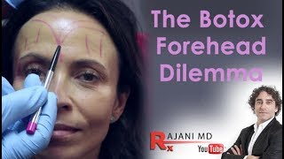 Video Botox Forehead Dilemma Explained- Dr Rajani MP3, 3GP, MP4, WEBM, AVI, FLV Oktober 2018