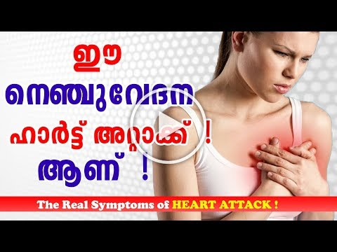 Heart Attack Symptoms And Prevention in Malayalam | Chest Pain ഹാർട്ട് അറ്റാക്ക് Ethnic Health Court