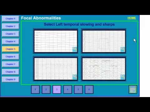 abnormalities - Review of focal findings on the EEG.