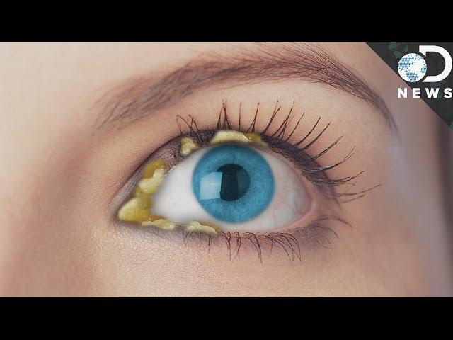 Why-do-we-get-eye