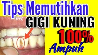 Video Tips Membersihkan Gigi Kuning dirumah dengan Mudah MP3, 3GP, MP4, WEBM, AVI, FLV Desember 2018