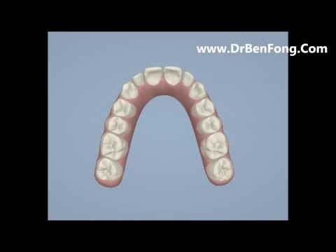 Invisalign Results for Idman E.| Before & After | www.invisalignresults.ca