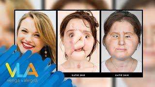 Katie y su trasplante de rostro ¡IMÁGENES IMPRESIONANTES! | Venga la Alegría
