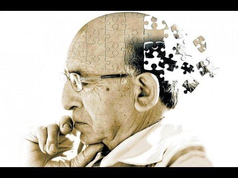 4 сенсационных факта о болезни Альцгеймера