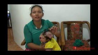Video Derita Aisyah Lahir Tanpa Wajah Dan Otak Diluar Kepala MP3, 3GP, MP4, WEBM, AVI, FLV Desember 2017