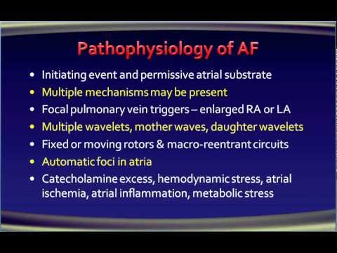 5 atrial fibrillation Pathophysiology