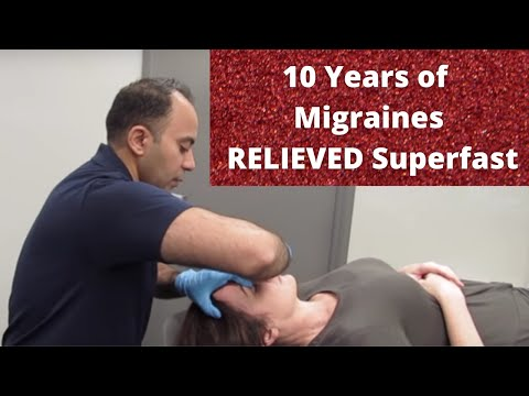 10 Years of Migraine Relieved Before Your Eyes! (THIS WORKS!!)