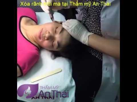 Xóa rãnh mũi má tại Thẩm mỹ An Thái