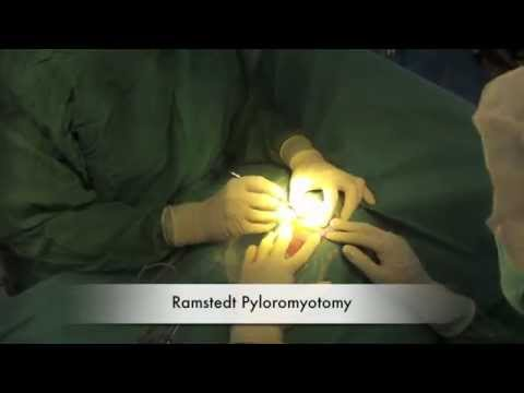 Pyloromyotomy in adults