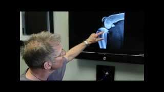 How TPLO Works discussed by Michael Bauer DVM, DACVS