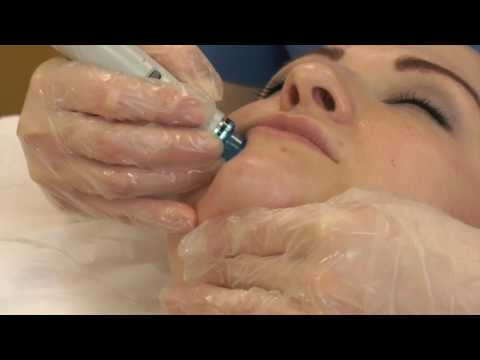 Hydrafacial Treatment Fulham London
