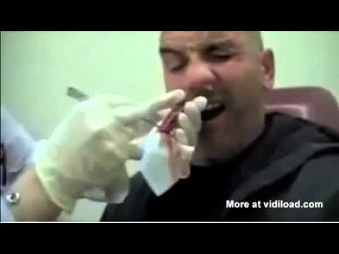 Ew! Doctor Pulls Out An Extremely Long Tapeworm From This Man's Nose