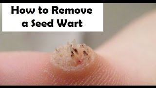 Get Rid of Warts the Natural Way - http://tinyurl.com/zxagey8 You may have heard the term seed warts. Many people will tell you that warts, especially planta...