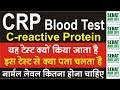 C Reactive Protein, CRP Blood Test क्यों किया जाता है इस टेस्ट से क्या पता चलता है नॉर्मल लेवल कितना