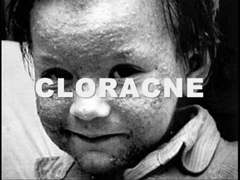 diossina nel cibo: la sostanza che ci uccide!
