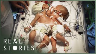 Video Conjoined Twins: The Tragedy of Hope and Faith (Medical Documentary) - Real Stories MP3, 3GP, MP4, WEBM, AVI, FLV Juli 2019