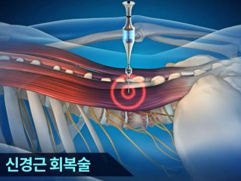 علاج التعافي  شين-كيونغ-كِن