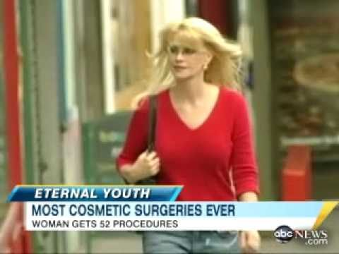Woman Takes Anti-Age Surgeries to Extreme
