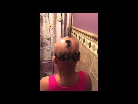 Living With Alopecia as a Child (видео)