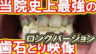 Video Very heavy tartar removal [Long] Dental treatment phobia patient MP3, 3GP, MP4, WEBM, AVI, FLV Desember 2017